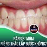 Răng bị móm niềng tháo lắp được không?
