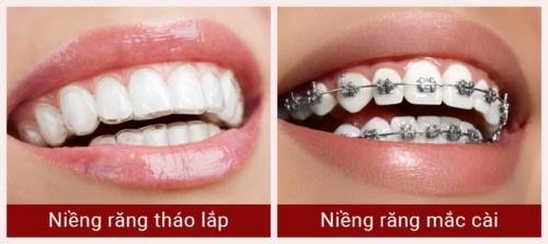 niềng răng tháo lắp và mắc cài