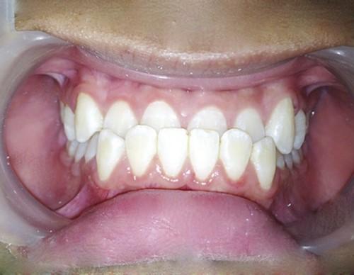 Răng bị móm