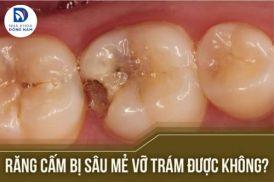 Răng cấm bị sâu mẻ vỡ trám được không?