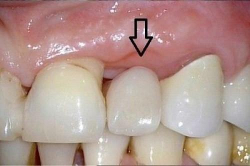 cầu răng sứ bị hở chân