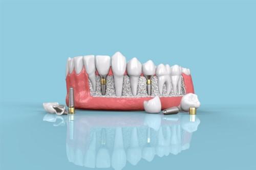 phương pháp cấy ghép răng implant