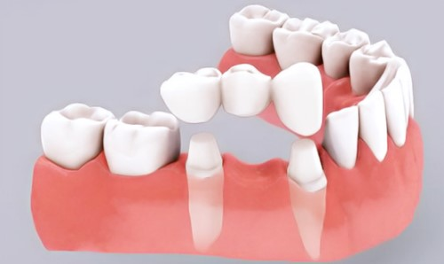 cầu răng sứ bị lung lay phải làm sao