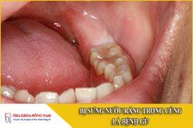 Bị sưng nướu răng trong cùng là bệnh gì?