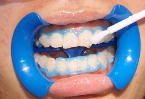 quá trình tẩy trắng răng