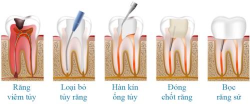 quá trình chữa tủy bọc răng sứ