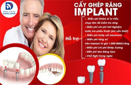 hỗ trợ cấy ghép răng implant