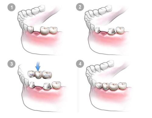 mô phỏng mỹ thuật trồng cầu răng sứ