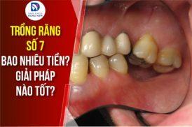Trồng răng số 7 bao nhiêu tiền? Giải pháp nào tốt?