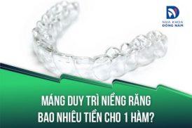 Máng duy trì niềng răng bao nhiêu tiền cho 1 hàm?