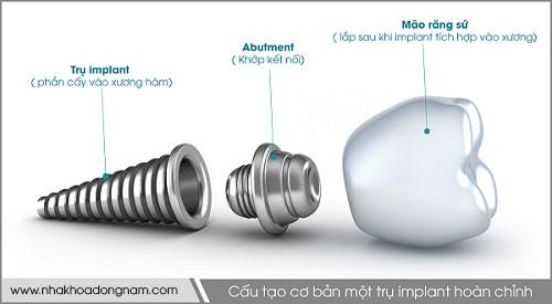 cấu tạo cơ bản của 1 trụ implant