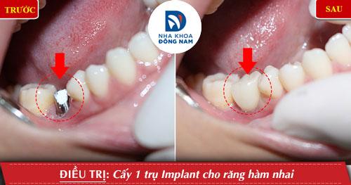 Cấy 1 trụ implant rang ham nhai