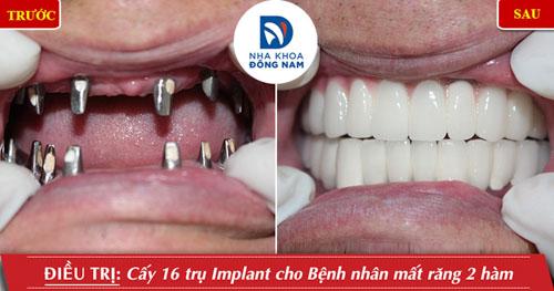 Cấy ghép Implant cho trường hợp mất răng 2 hàm