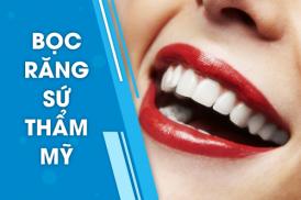 Dịch vụ bọc răng sứ thẩm mỹ tại Nha Khoa Đông Nam
