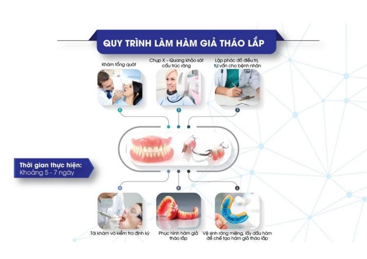 quy trình làm răng giả tháo lắp