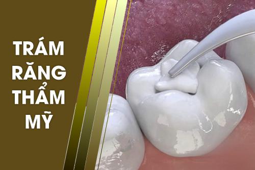 Dịch vụ trồng răng sứ bắc cầu tại Nha Khoa Đông Nam
