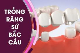 Dịch vụ trồng răng sứ bắc cầu