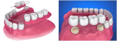 răng tháo lắp và cầu răng sứ