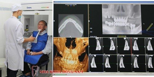 chụp phim ct kiểm tra tình trạng xương hàm