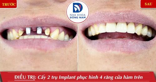 cấy implant 2 răng cửa