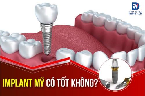 Cấy ghép Implant mỹ có tốt không? Giá bao nhiêu?