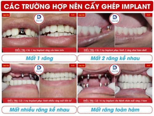 các trường hợp cấy ghép răng implant