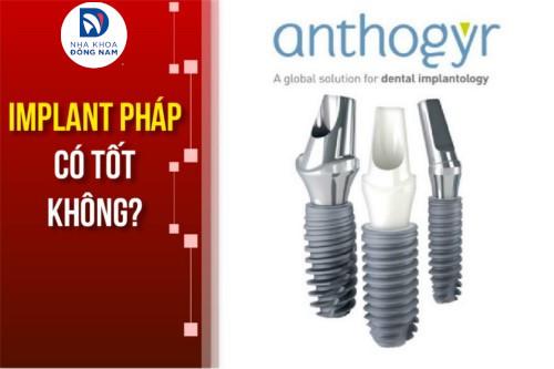 Cấy ghép Implant Pháp có tốt không? Giá bao nhiêu?