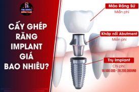 Cấy Ghép Răng Implant giá bao nhiêu tiền?