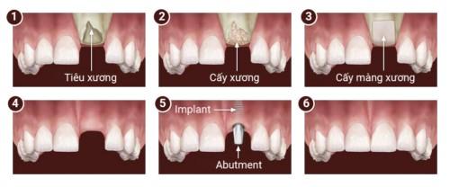 mô phỏng cấy ghép xương trong implant (/m/02pc93z)