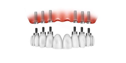 cấy ghép Implant nguyên hàm