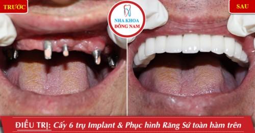 trồng răng implant toàn hàm trên