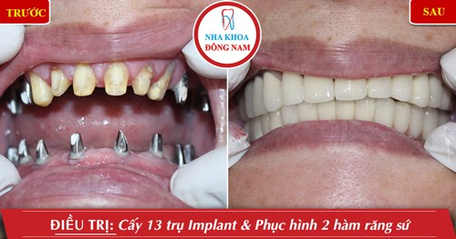 cấy ghép implant hàm dưới