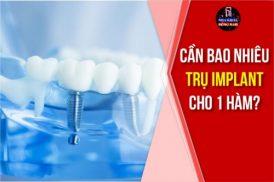 Mất răng toàn hàm cấy mấy trụ Implant?