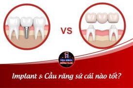 Nên Làm Cầu Răng Sứ hay Cấy Ghép Implant?