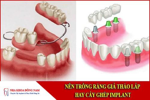 Nên trồng răng giả tháo lắp hay cấy ghép Implant