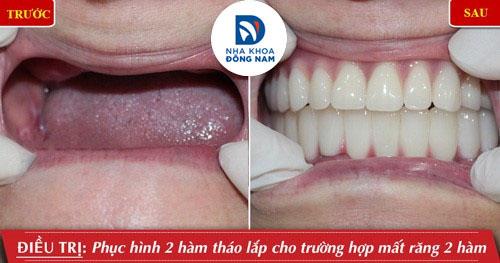 trồng răng giả tháo lắp 2 hàm