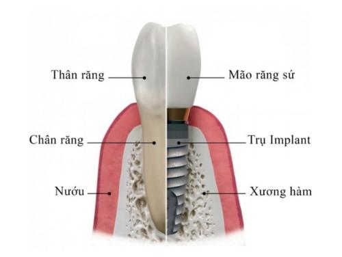 cấu tạo của 1 răng implant