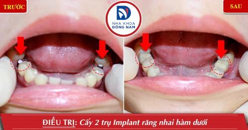 trồng implant 2 răng số 6 hàm dưới