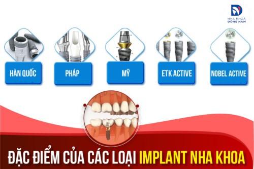 Sự khác biệt giữa các loại Implant nha khoa