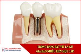 Trồng răng bắt vít là gì? Giá bao nhiêu tiền một cái?