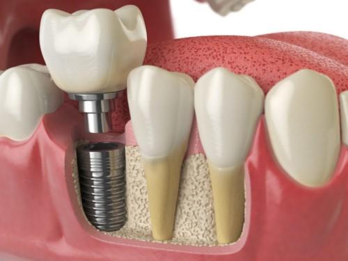 mô phỏng trồng răng implant