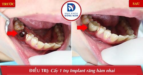cấy ghép implant cho răng nhai hàm dưới