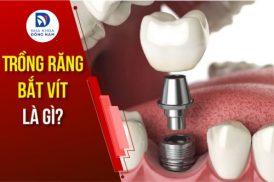 Trồng răng bắt vít là gì? Giá bao nhiêu tiền một cái?;