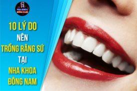 10 Lý do nên Trồng Răng Sứ tại Nha Khoa Đông Nam