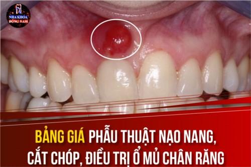 Bảng giá phẫu thuật nạo nang, cắt chóp, điều trị ổ mủ chân răng