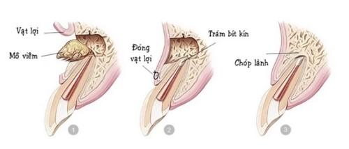 mô phỏng phẫu thuật nạo nang, cắt chóp