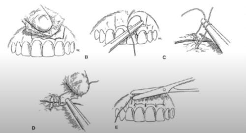 quy trình nạo nang cắt chóp