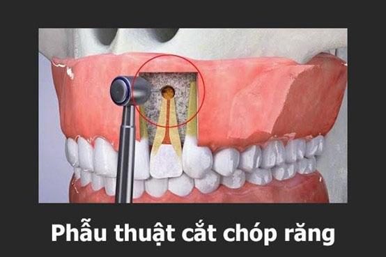cắt chóp chân răng