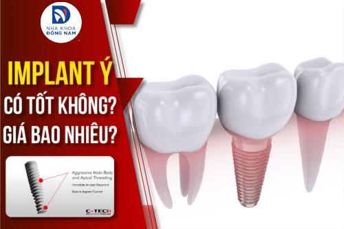 Cấy Ghép Implant Ý Có Tốt Không? Giá Bao Nhiêu?