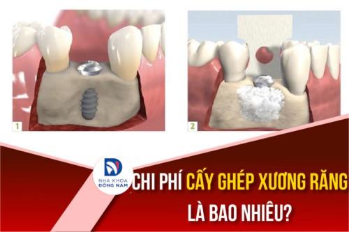 Chi phí cấy ghép xương răng là bao nhiêu?